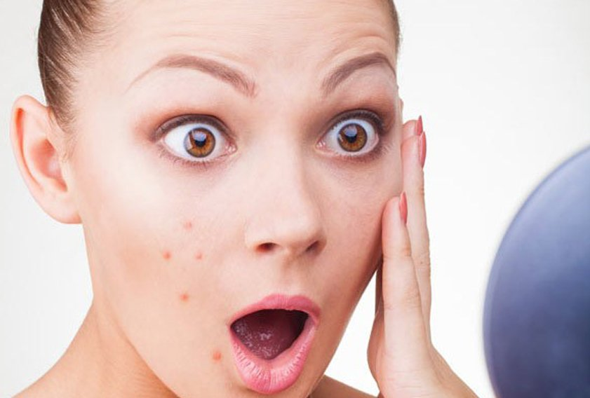 Top 5 acne treatment creams in India: Get rid of acne and acne scars faster