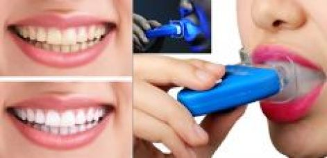 Flat 17% off on Teeth Whitener